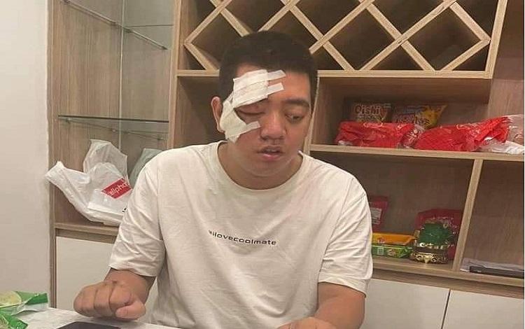Bản Tin AoE ngày 23/04: He He gặp chấn thương bỏ ngỏ khả năng tham gia các giải đấu sắp tới